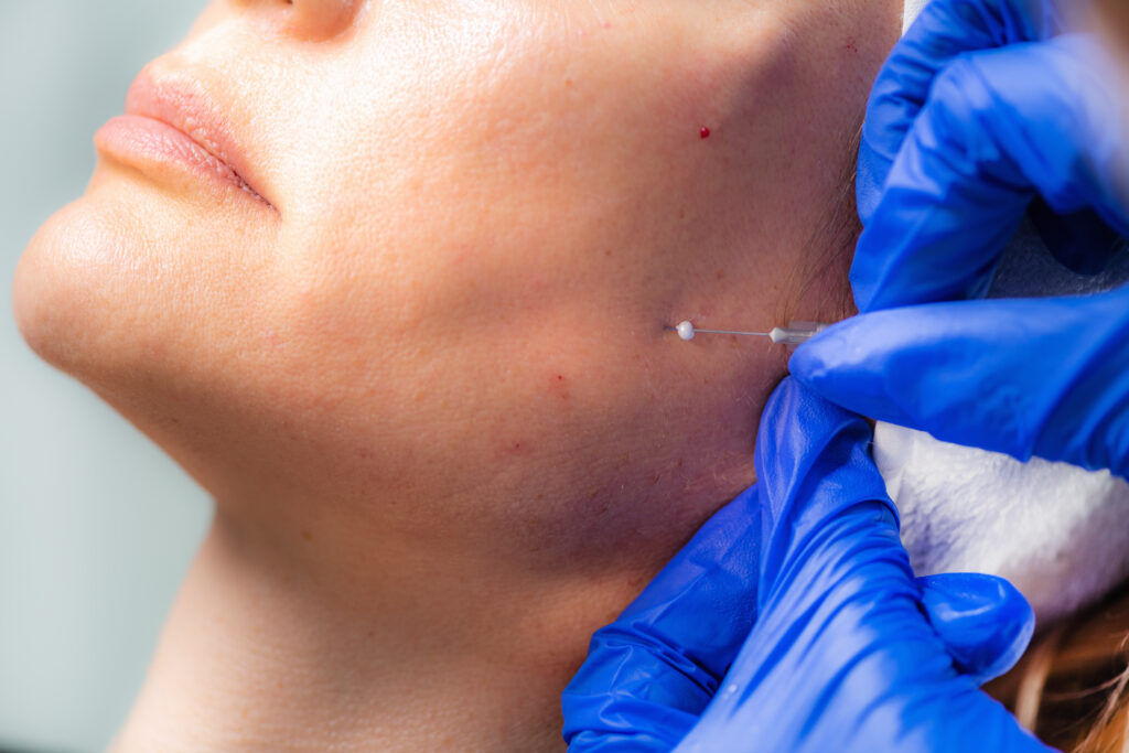 Woman recieving dermal filler treatment | Featured Image for Dermal Filler Information | Blog