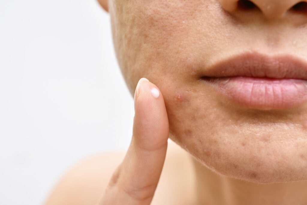 Acne and face skin problem, Woman applying acne cream medication   Featured image for treating Acne & Dealing with Acne   Blog