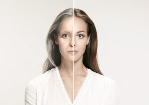 Before and after facial rejuvenation photo   Featured image for Infini with PRP blog.
