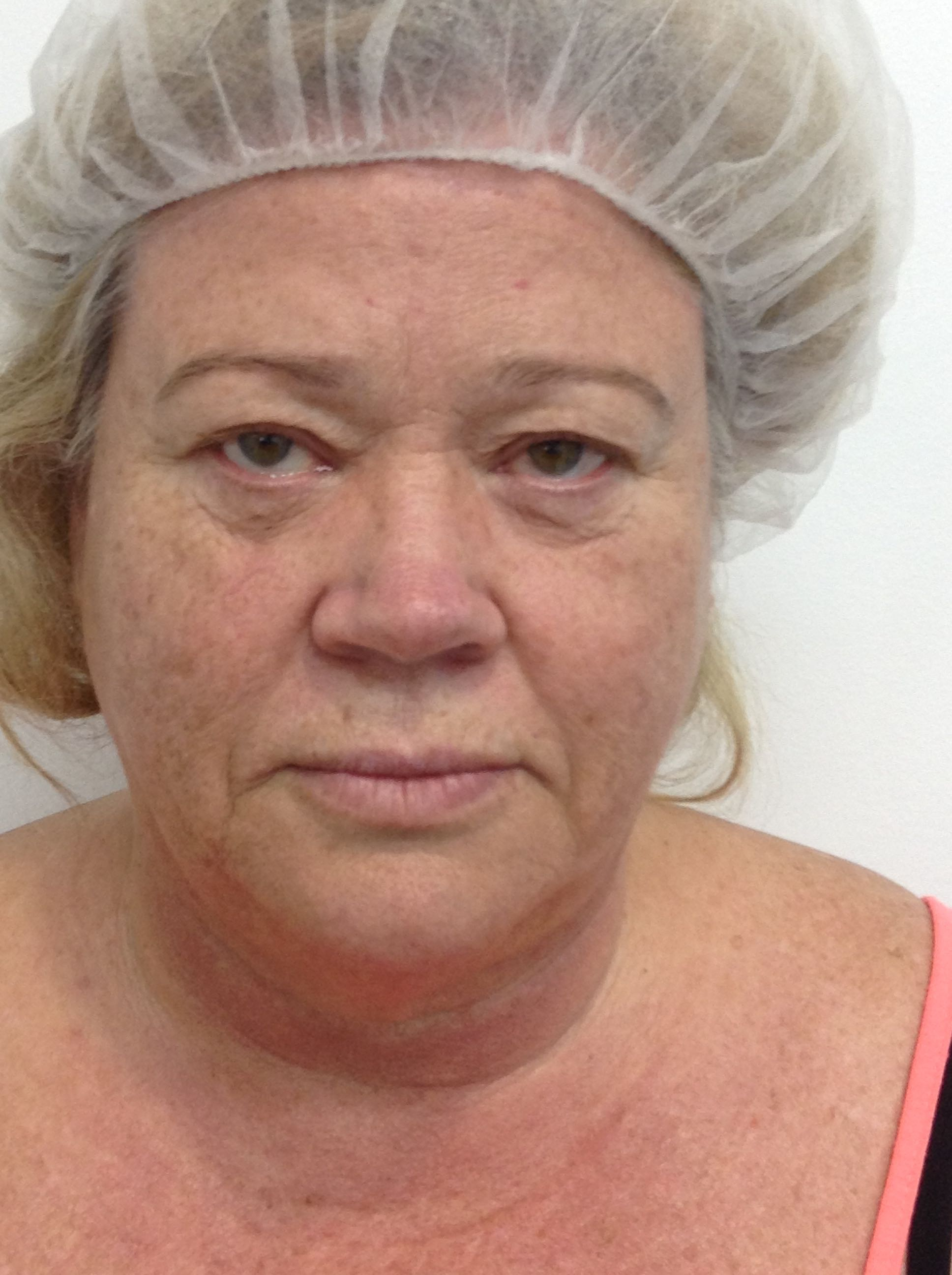 Blepharoplasty / Eyelid Surgery – Brisbane Cosmetic Clinic
